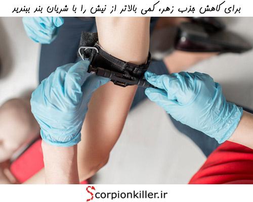 سرعت گسترش زهر عقرب در خون را با استفاده از یک شریان بند و یا یک نوار پارچه ای کاهش دهید